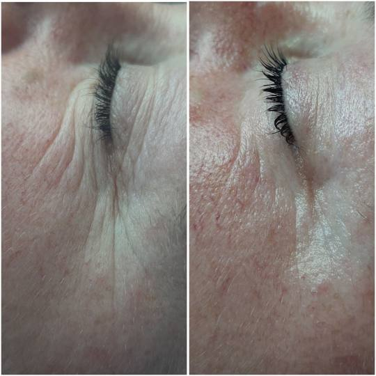 Look at me #beograd Tretman lica Eyelid booster