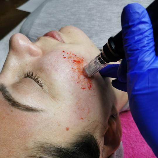 Platinum Beauty Code #beograd Tretman lica Mezoperapija dermapenom Tretiranje ožiljaka od akni derm