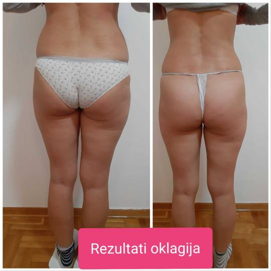 Just You Beauty & Nails #beograd Anticelulit masaža Maderoterapija  celih nogu + gluteus + stomak