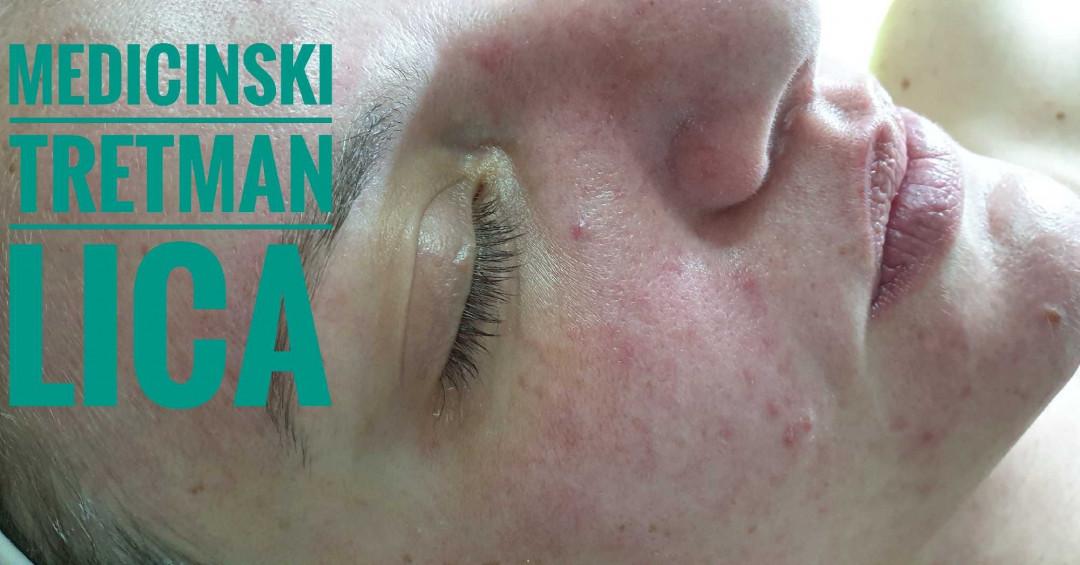 LookBook Tina B Medicinski tretman lica