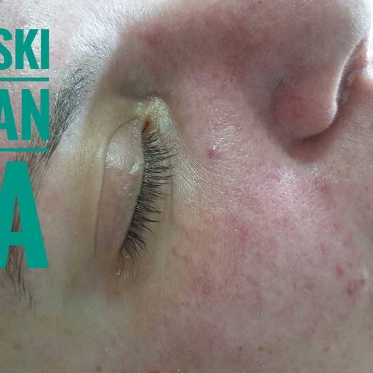 Tina B #beograd Tretman lica Medicinski tretman lica
