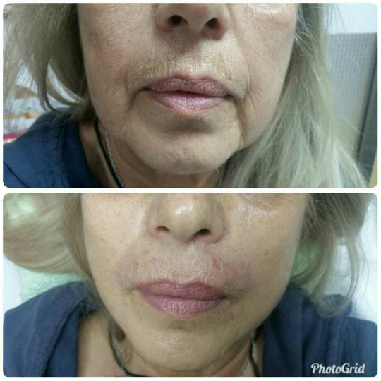 Maximus 1 #nis Hijaluronski tretmani lica Hijaluronski fileri (1 ml) Popunjavanje dubokih bot (puša