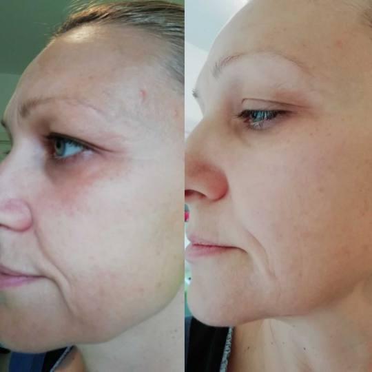 Olja Beauty #beograd Lifting / zatezanje kože HiFu tretman lica - po regiji HiFu tretman, nehirusko