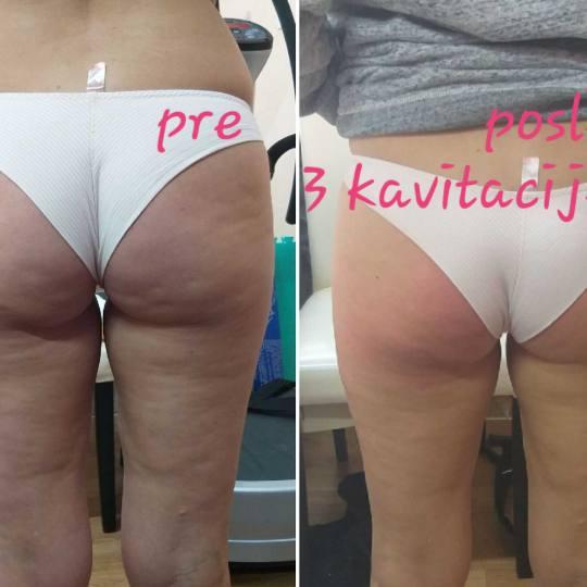 My little secret #beograd Kavitacija Kavitacija + radiotalasni lifting tela + vakum - 50 minuta Kavi