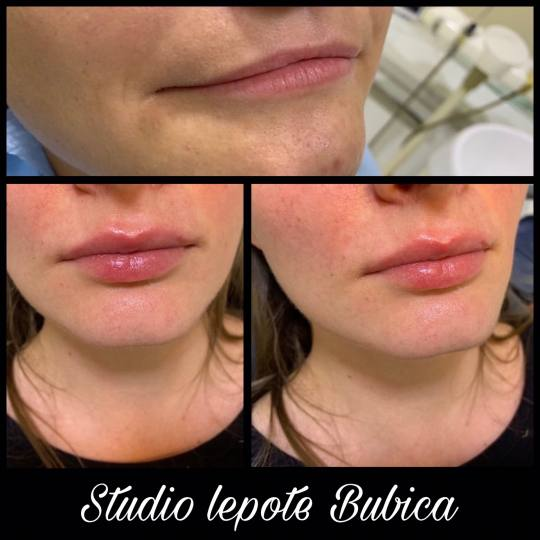 Bubica #beograd Dermalni fileri Hijaluronski filer Juvederm 1cc Dermalni fileri