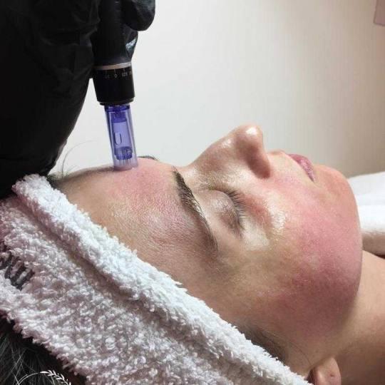 Sensus #beograd Dermaroler i dermapen Mezoterapija lica dermapenom - za hiperpigmentaciju