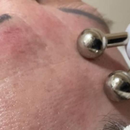 Fam Beauty Box #beograd Tretman lica Radiotalasni lifting lica