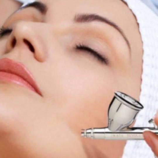 GM Beauty studio #beograd Hijaluronski tretmani lica Tretman lica hijaluronskom ampulom Fileri bez i