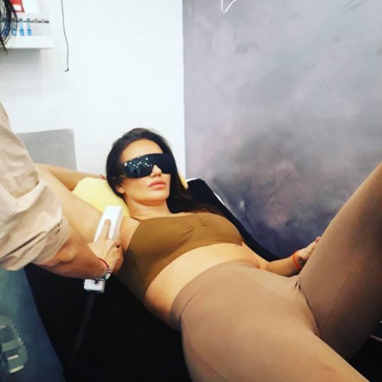 Salon Klinik #beograd Laserska epilacija Laserska epilacija pazuha - za dame Laserska epilacija pazu