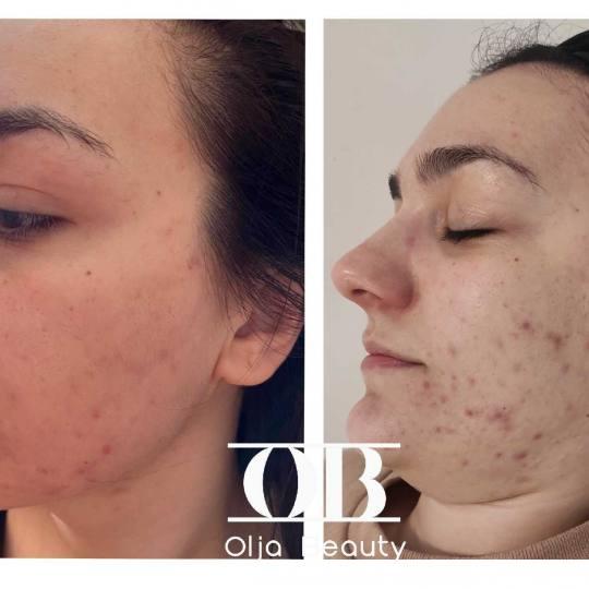 Olja Beauty #beograd Mezoterapija lica Mezoterapija + hemijski piling Hemijski +mezo terapijax