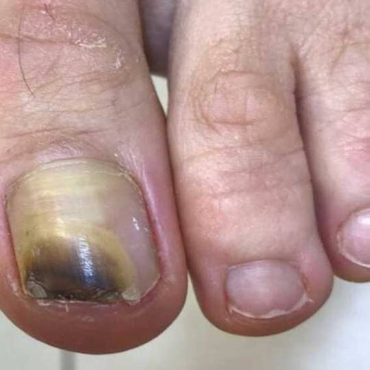 Tina B #beograd Medicinski pedikir Medicinski pedikir - gljivični / oboleli nokti