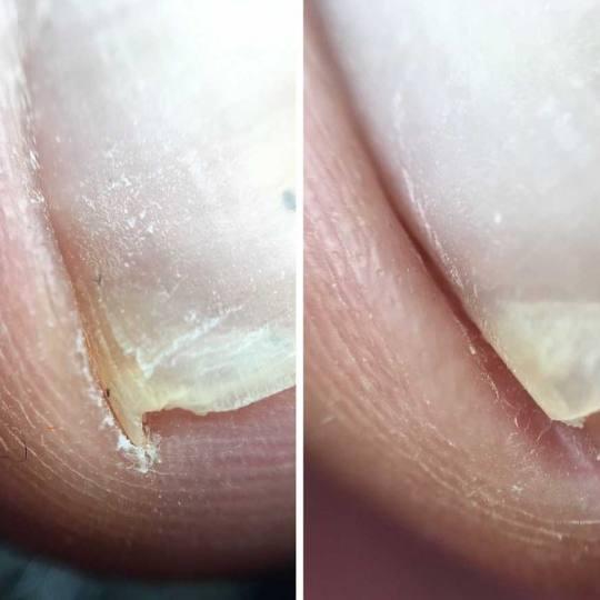 Tina B #beograd Korekcija noktiju Obrada uraslog nokta