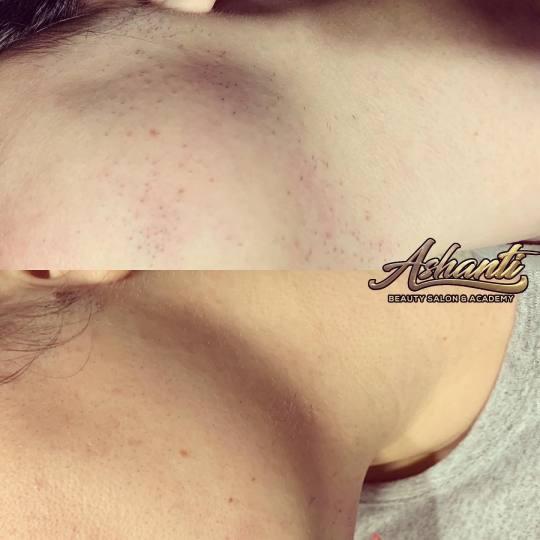 Ashanti Beauty Salon & Academy #beograd Laserska epilacija Laserska epilacija celog lica - za dame D