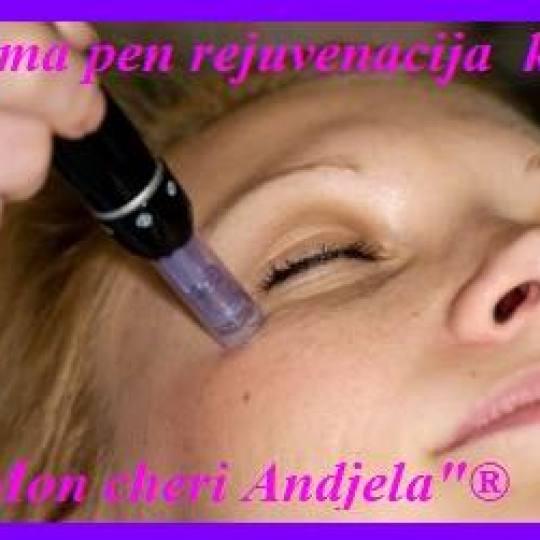 Mon cheri Anđela #beograd Dermaroler i dermapen Dermapen tretman lica Dermapen