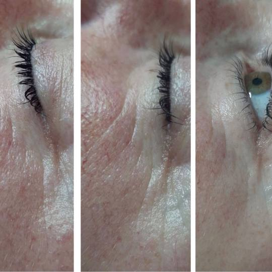 Look at me #beograd Tretman lica Eyelid booster pre tretmana , tokom serije i po završenoj seriji o