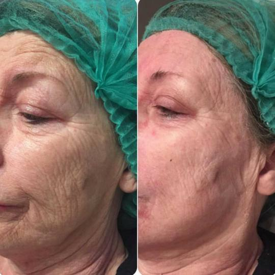 Grossi cosmetic #beograd Tretman lica PRP tretman celog lica