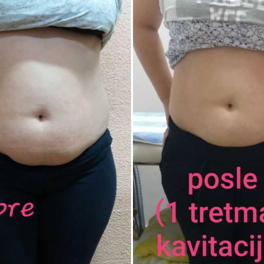 My little secret #beograd Kavitacija Kavitacija - 30 minuta Kavitacija