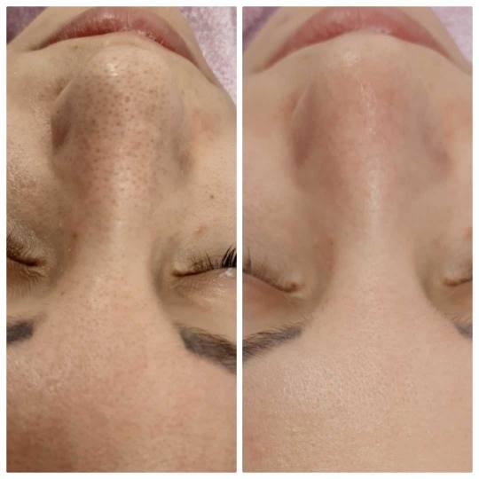 Salon lepote Felicita #beograd Tretman lica Hidrodermoabrazija