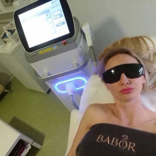 Epil Studio #beograd Laserska epilacija Laserska epilacija pazuha za dame Laserska Epilacija