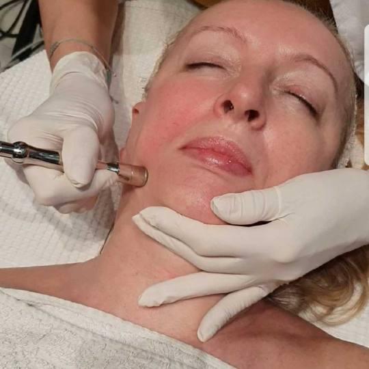 Grossi cosmetic #beograd Tretman lica Tretman lica kiseonikom