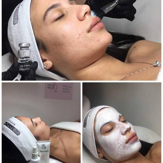 Sensus #beograd Tretman lica Hemijski piling - aknozna koža