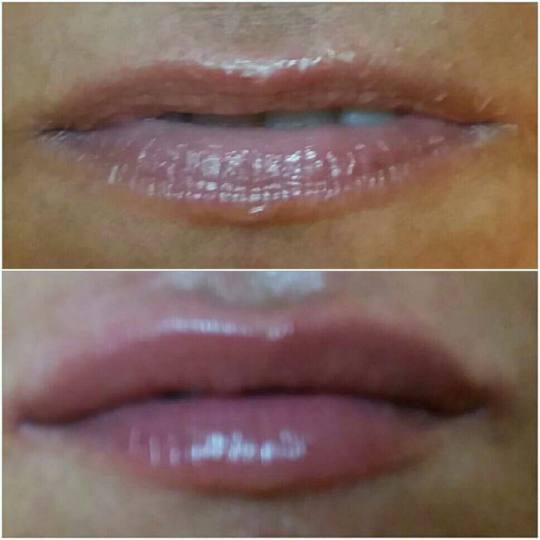 Diamond B #beograd Kozmetički doktori Hijaluronski filer - 1 cc uvecanje usana-volumen