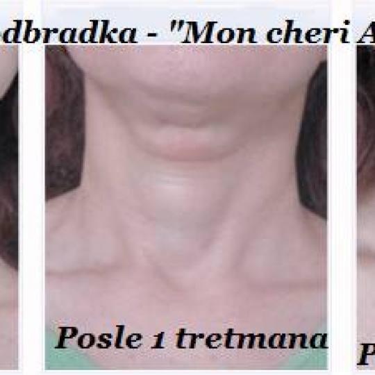 Mon cheri Anđela #beograd Tretmani protiv bora RF tretman lica, vrata i dekoltea