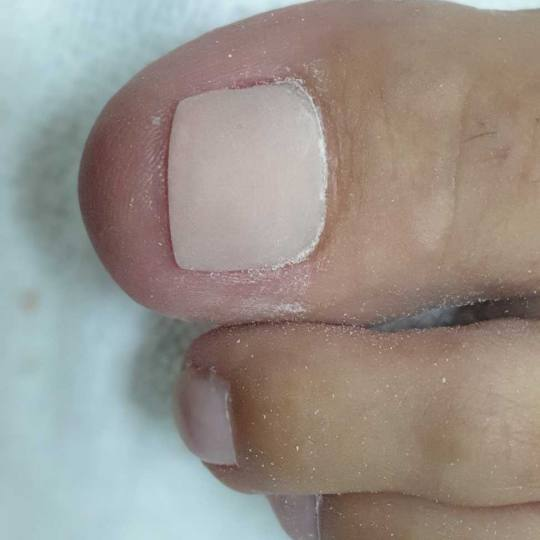 Tina B #beograd Korekcija noktiju Protetika nokta - noge
