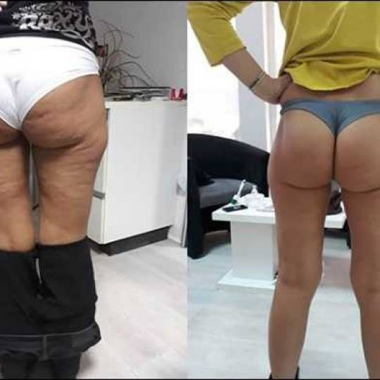 AltaBella #beograd Tretmani tela Uthera - HIFU zatezanje i oblikovanje tela - manja regija rtl+hifu+