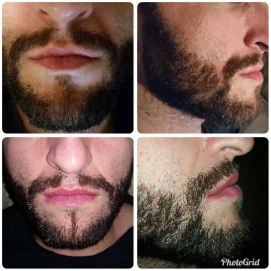 Maximus 1 #nis Hijaluronski tretmani lica Hijaluronski fileri (1 ml) Korekcija usana hijaluronskim f