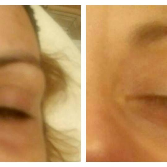 Terra Esthetica #beograd Tretmani regije oko očiju Ella Bache tretman za očnu zonu Ella Bache tret