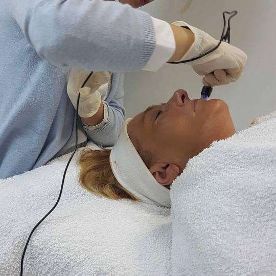 Davidijus #beograd Tretman lica BB Glow tretman
