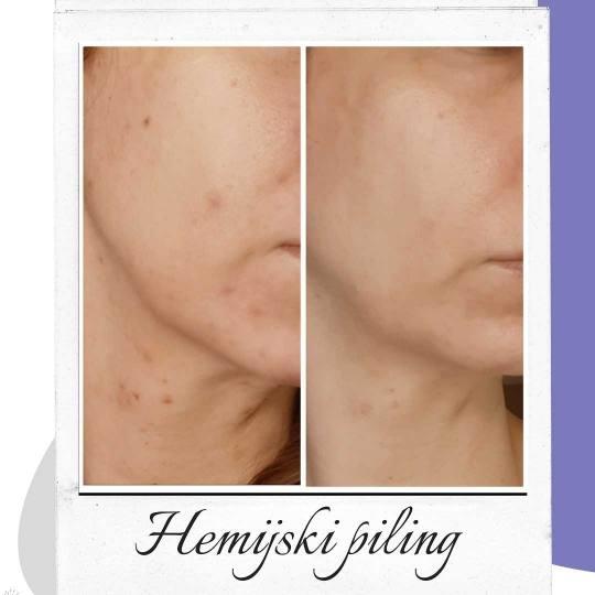 Salon lepote Felicita #beograd Tretman lica Tretman lica voćnim kiselinama