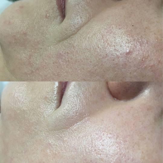 Look at me #beograd Tretmani protiv bora 3D Wrinkle tretman lica