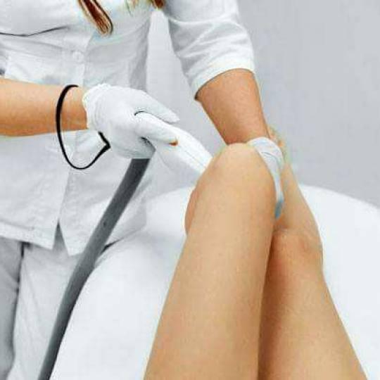 Ordinacija Epil Medic #beograd Laserska epilacija Laserska epilacija celih nogu za dame Laserska epi