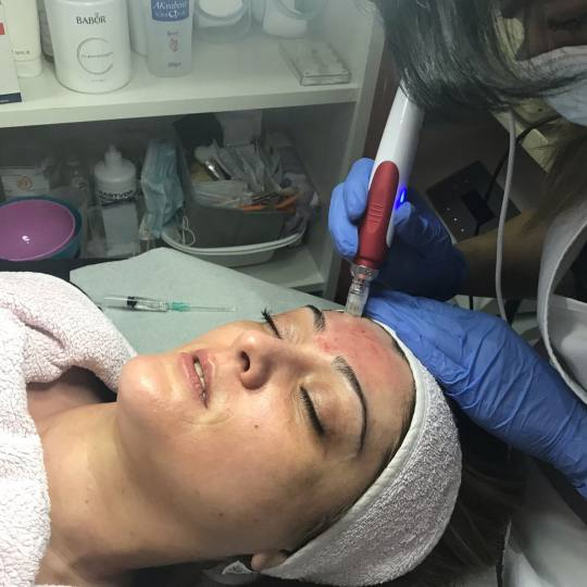 Estetic beauty centar Amica #beograd Mezoterapija lica Dermapen tretman