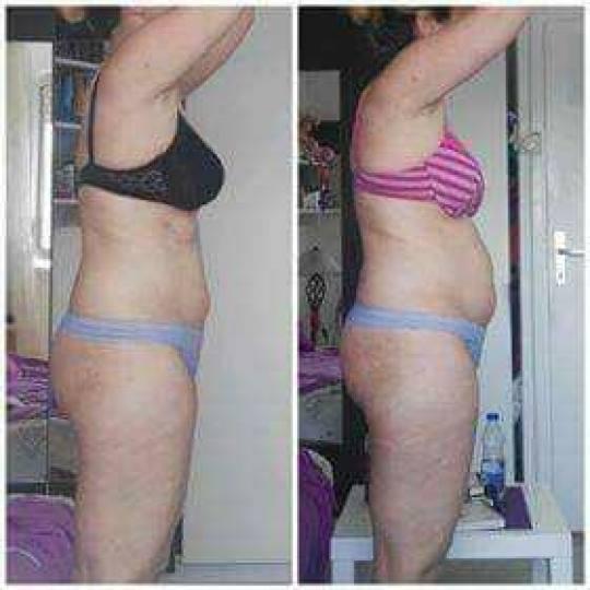 Beauty queen M&M #beograd Tretmani tela Ultrazvučna kavitacija + termo gel - po regiji Telo