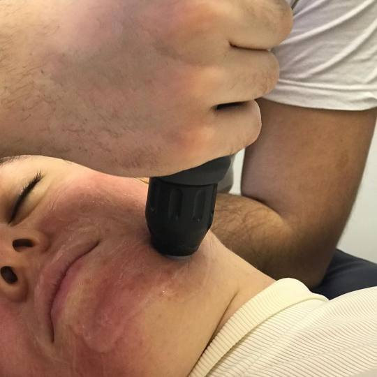 Dijars #beograd Tretman lica Uklanjanje bora i ožiljaka - AWT retman