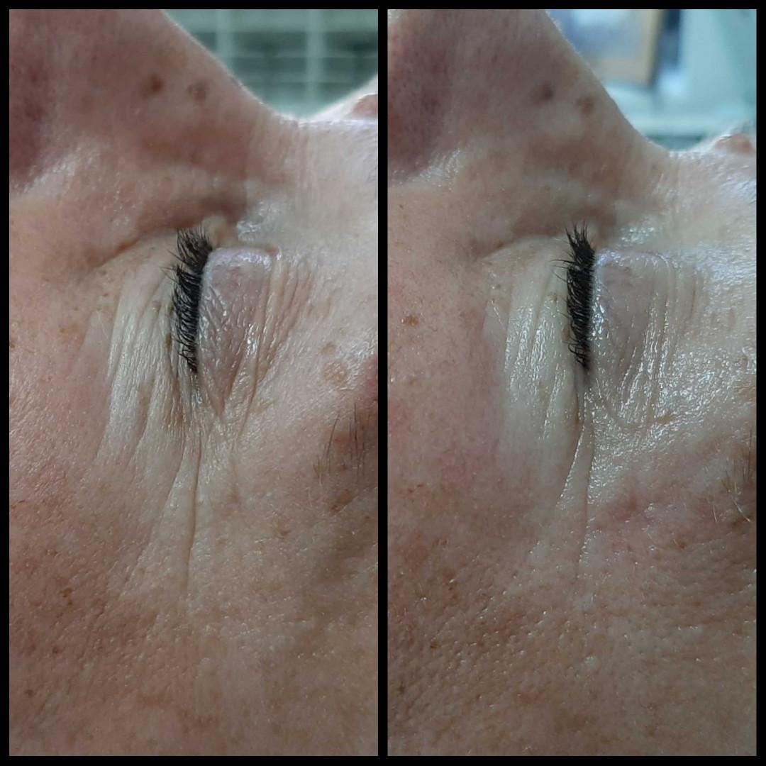 LookBook Look at me 3D Wrinkle tretman lica