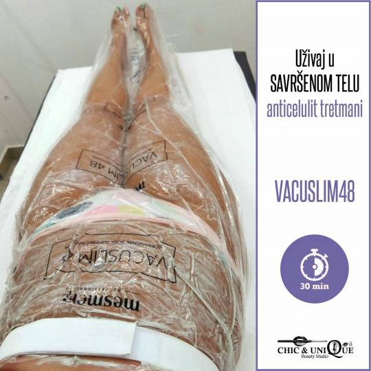 Chic & Unique #beograd Tretmani tela Vacuslim 48 tretman - stomak, gluteus, noge