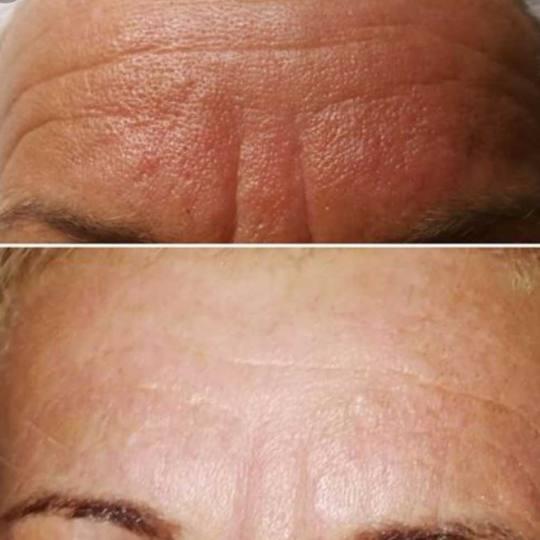 Davidijus #beograd Tretman lica Plazmapen