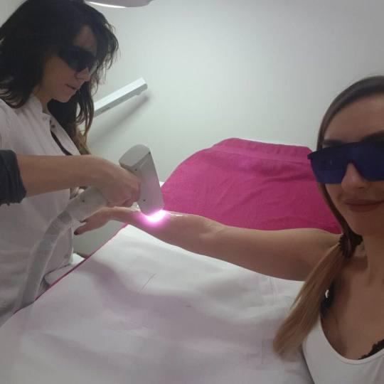 Epilis laser centar #beograd Laserska epilacija Laserska epilacija celih ruku - za dame Epilacija