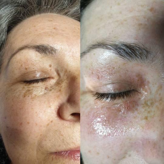 Grossi cosmetic #beograd Tretman lica Plazma pen - uklanjanje keratoza, fibroma, tetovaža i ateroma