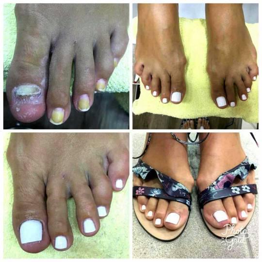 Tamara #beograd Medicinski pedikir Protetika noktiju Medicinski pedikir