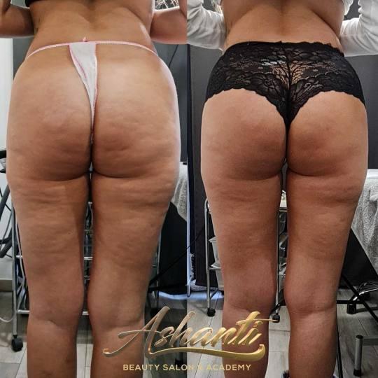 Ashanti Beauty Salon & Academy #beograd Tretmani tela Ultrazvučna kavitacija + radiotalasni lifting