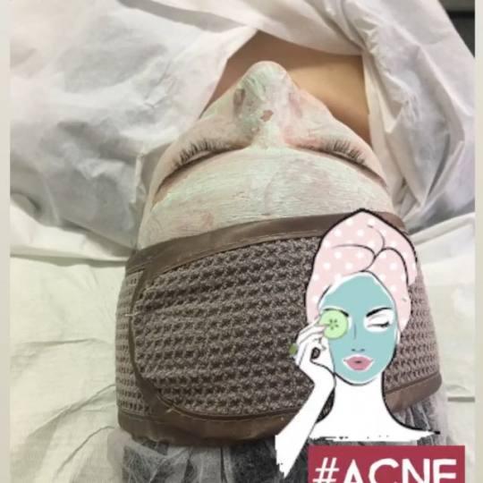 Look at me #beograd Tretman lica Higijenski tretman lica + fitopiling Problematična koža- tretman
