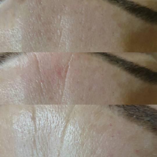 Body N Soul studio #beograd Lifting / zatezanje kože Dermapen tretman lica sa serumima Bore izmedju