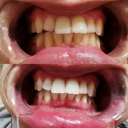 D&D Beauty Center #beograd Laserski tretmani lica Lasersko izbeljivanje zuba