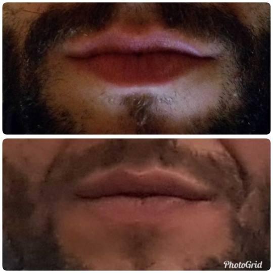 Maximus 1 #beograd Hijaluronski tretmani lica Hijaluronski fileri (1 ml) Korekcija usana hijaluronsk