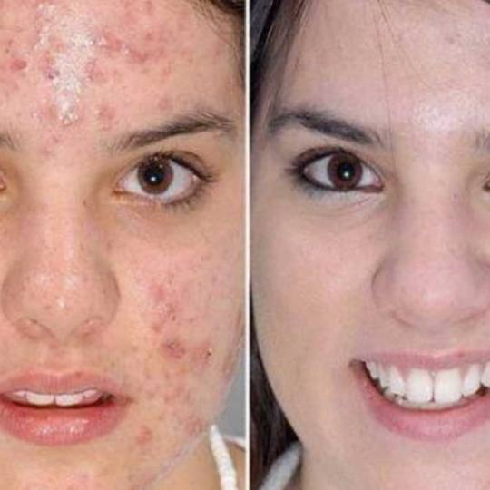 Davidijus #beograd Dermaroler i dermapen Dermapen - celo lice